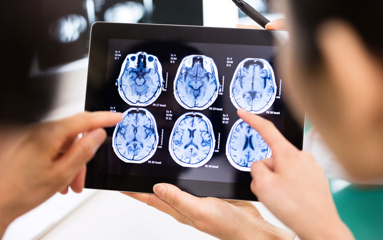 Physicians looking at brain scans